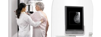 Mammography – Tomosynthesis